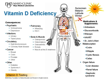 osteomalacia nutrition and vitamin Nutrition vitamins and minerals vitamin d is a fat soluble vitamin that plays a vital role in the human body vitamin d deficiency is a leading cause of osteomalacia, thinning of the bone, which is a precursor to osteoporosis.